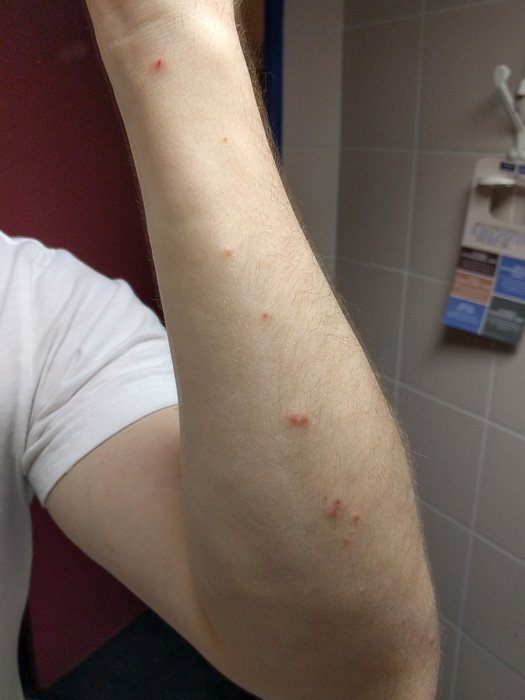 Bites on an arm from Bed Bugs